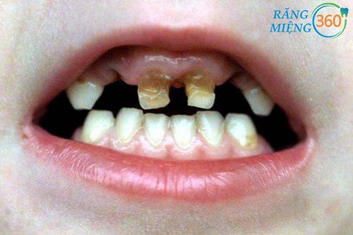 Hình ảnh sâu răng hàm