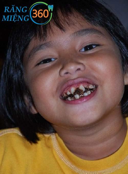 Hình ảnh sâu răng của bé