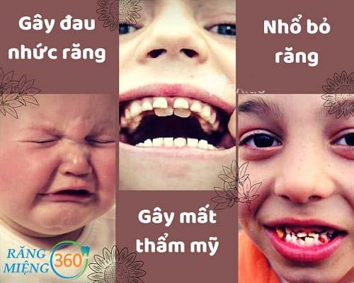 Những hình ảnh sâu răng ở trẻ em