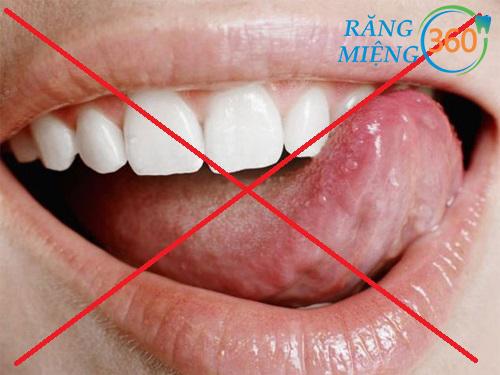 Bị đau răng kiêng gì