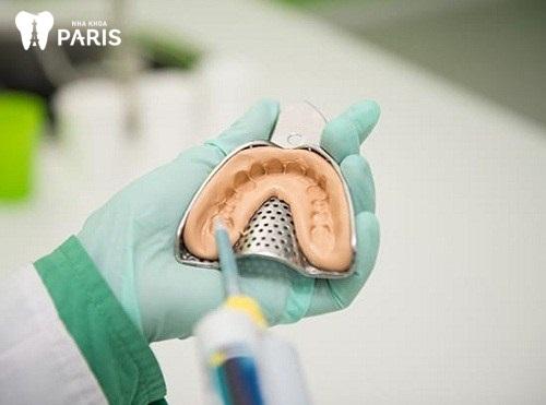 các bước bọc răng sứ như thế nào