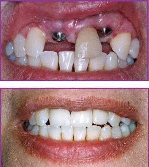 các bước trồng răng sứ thẩm mỹ