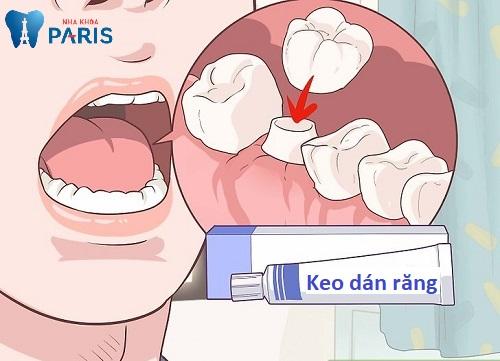 các loại keo dán răng sứ