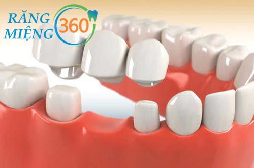 Cầu răng sứ