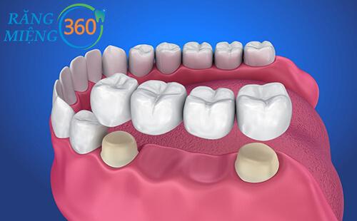 Bắc cầu răng sứ là gì