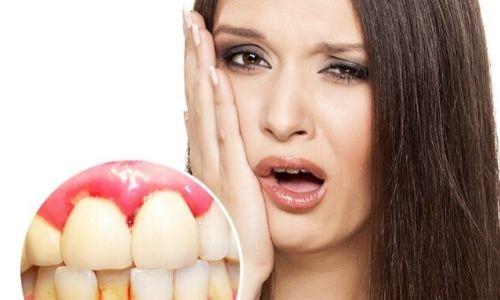 chảy máu chân răng có nguy hiểm không