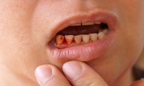 chảy máu chân răng không cầm được