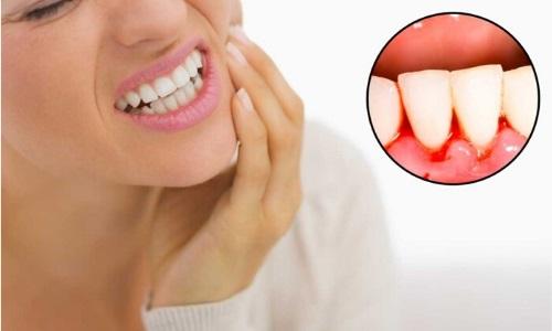 chảy máu chân răng là bệnh gì