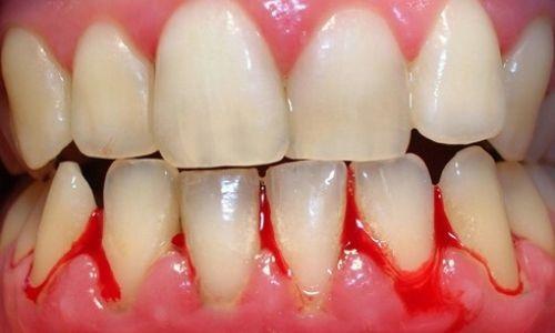 chảy máu chân răng thường xuyên