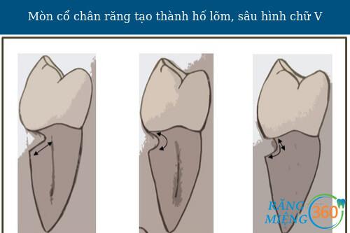 Bị mòn cổ chân răng có nguy hiểm không