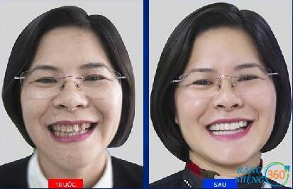 Cách trị mòn chân răng