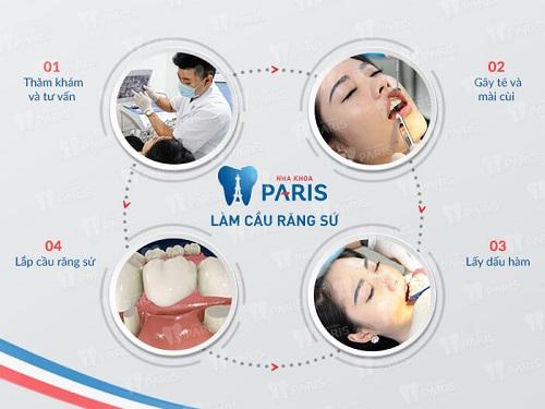 Quy trình làm cầu răng sứ mất bao lâu