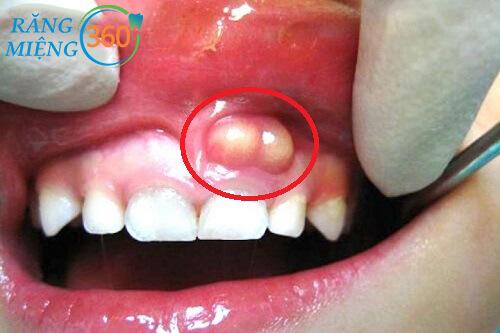 bị áp xe răng sữa có nên nhổ trăng không