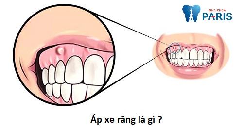 Bệnh áp xe răng là gì