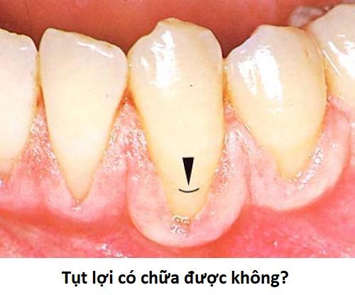 Bệnh tụt nướu răng có chữa được không