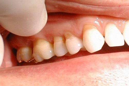 Bị hở chân răng phải làm sao