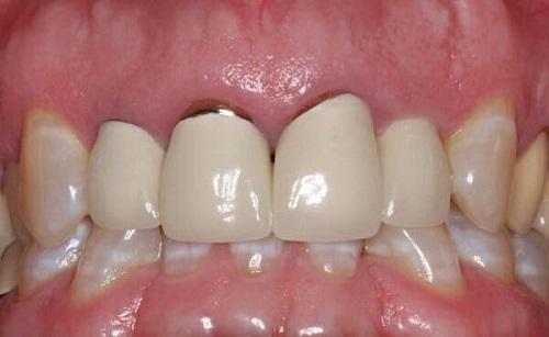 bọc răng sứ bị tụt lợi chân răng