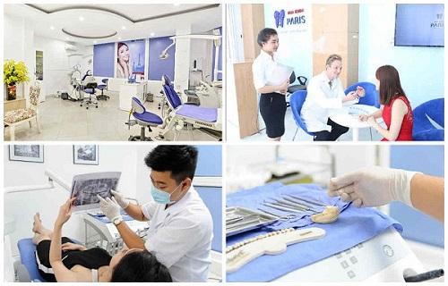 Cách chữa tụt lợi răng hàm
