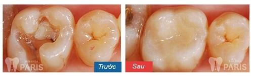cách điều trị áp xe răng cho bé