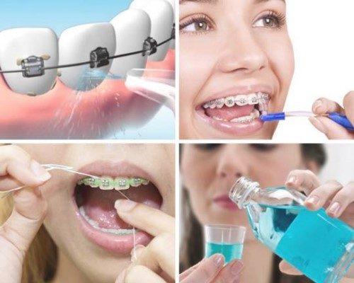 cách vệ sinh răng miệng khi niềng răng