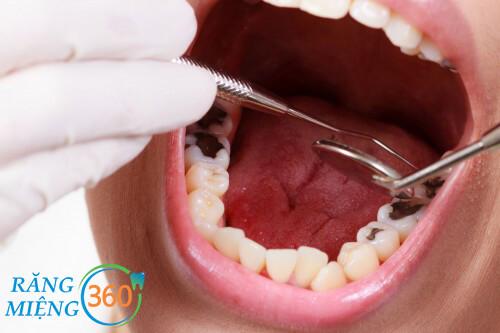 hàn răng có đau không