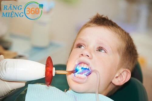 Hàn răng cho bé 3 tuổi