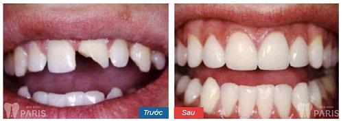Hàn răng mẻ hết bao nhiêu tiền