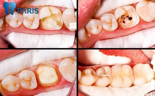 Hàn răng sâu có tốt không