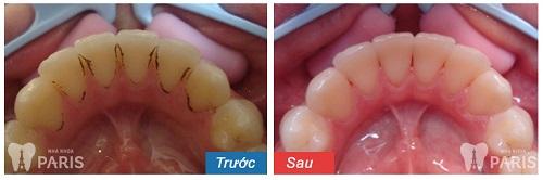 Khi cao vôi răng đau không