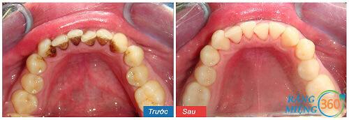Khi lấy cao răng đau không