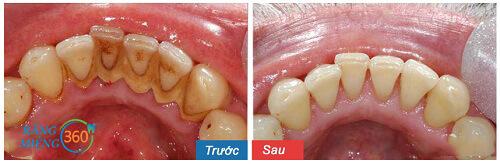 Khi cạo vôi răng có đau không