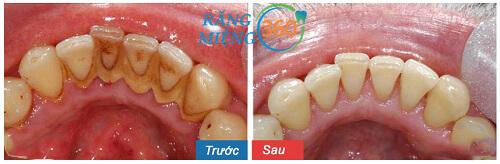 răng bị mảng bám đen phải làm sao
