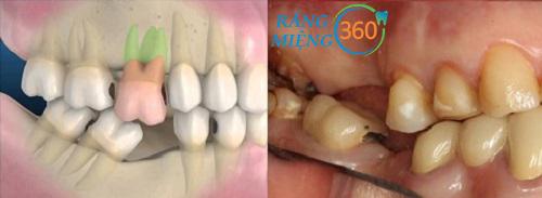 hậu quả của mất răng số 6 sớm
