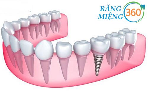 Trồng răng hàm số 6
