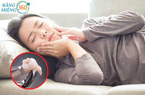 Cách vệ sinh răng miệng sau khi nhổ răng khôn