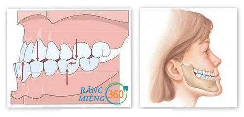 Nguyên nhân nghiến răng khi ngủ ở trẻ em