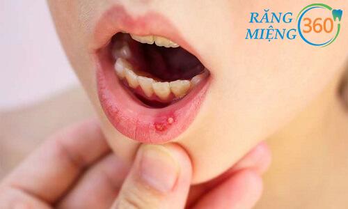 Bệnh lở miệng có nguy hiểm không