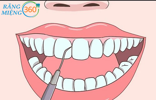 Bộ dụng cụ lấy cao răng tại nhà