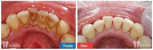 dụng cụ lấy cao răng nha khoa (scraper)