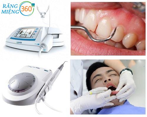 dụng cụ lấy cao răng siêu âm tại nha khoa
