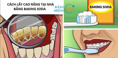 Cách lấy cao răng bằng Baking soda