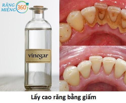 cách lấy cao răng bằng giấm