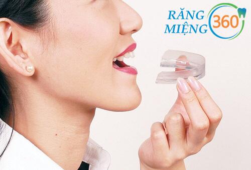 cách sử dụng máng chống nghiến răng
