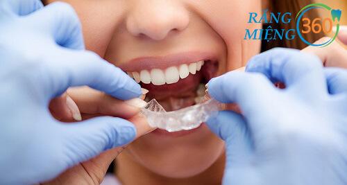 Mua máng chống nghiến răng ở đâu