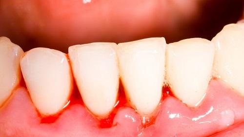 Nguyên nhân bị ê buốt răng là gì