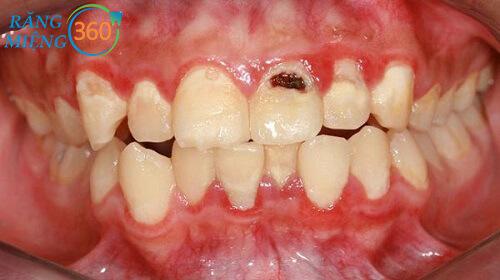 Bị ê buốt răng cửa hàm dưới
