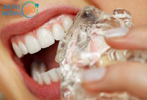 Tại sao răng bị ê buốt khi nhai