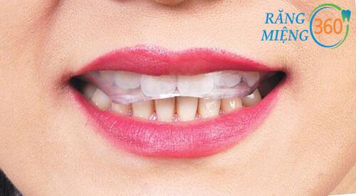 Tác dụng của máng chống nghiến răng khi ngủ