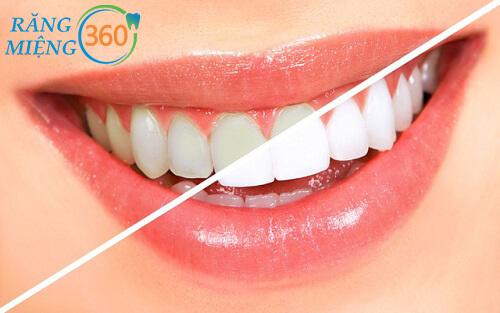 Tẩy trắng răng bị ê buốt bao lâu
