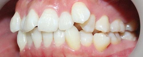 không nhổ răng khôn mọc lệch được không